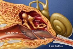 PRinc_rm_illustration_showing_middle_ear_infection